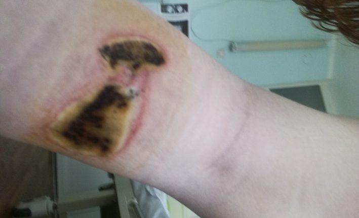 Челябинские врачи вырезали девушке-подростку аппендикс, но обожгли ноги