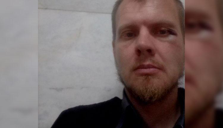 В Челябинске серьезно избили координатора местного штаба Навального